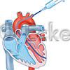 Herzkatheterinjektion