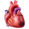 Herzinfarkt 01