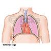 Herz Lunge