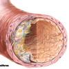 Arteriosklerose 5