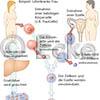 Stammzelltherapie 1