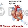 Stammzelltherapie 5